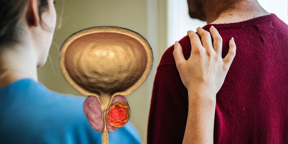Prostatakrebs Lebenserwartung ohne Behandlung