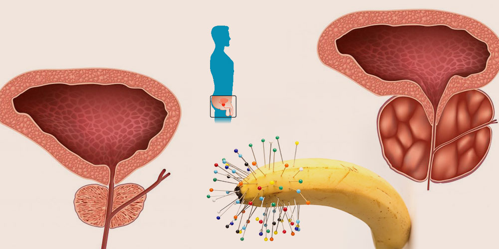 chronische Prostatitis Symptome