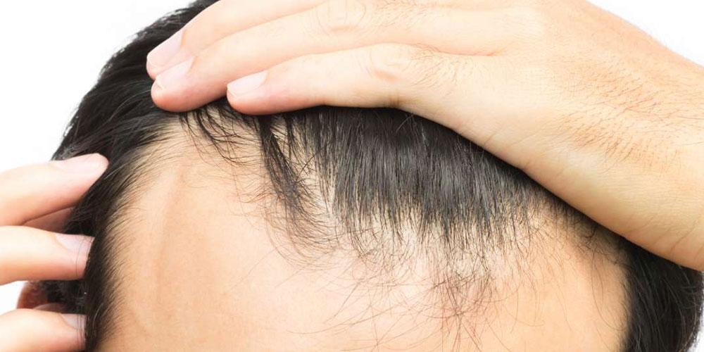 Haarausfall Männer Ursachen