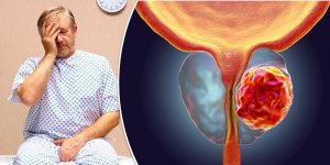 Prostatakrebs Symptome - Fortgeschrittener Prostatakrebs..