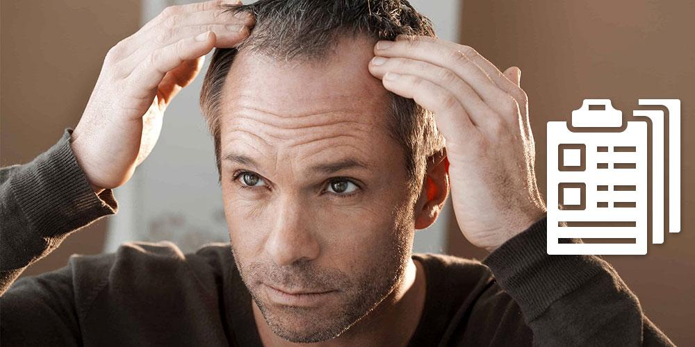 Was hilft gegen Haarausfall bei Männern